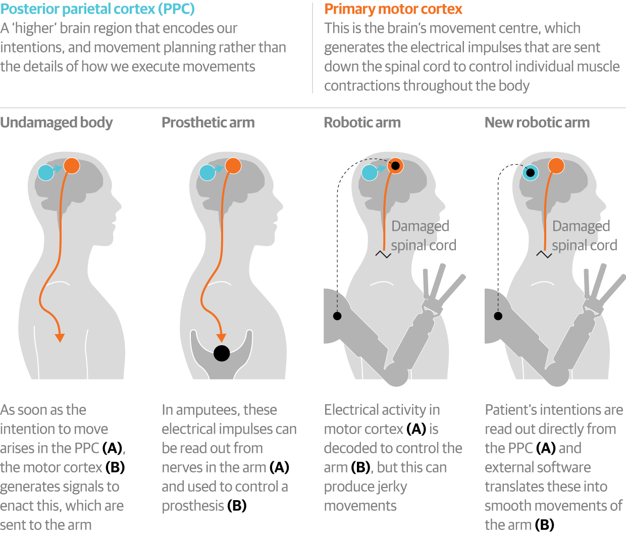 Brain implant controls robotic arm - with the power of thought